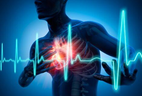 LA FIBRILACIÓN ARTERIAL AHORA SE PUEDE PREVENIR: Causa gran impacto en la salud pública por la mortalidad