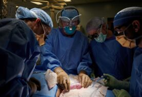 TRASPLANTAN CON ÉXITO RIÑÓN DE CERDO A UNA PACIENTE: Colocan el órgano genéticamente modificado a una mujer